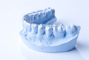 impronta-dentale-positivo-easydent
