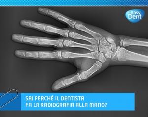 radiografia di una mano