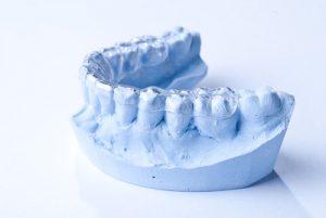 Il positivo di un'impronta dentale