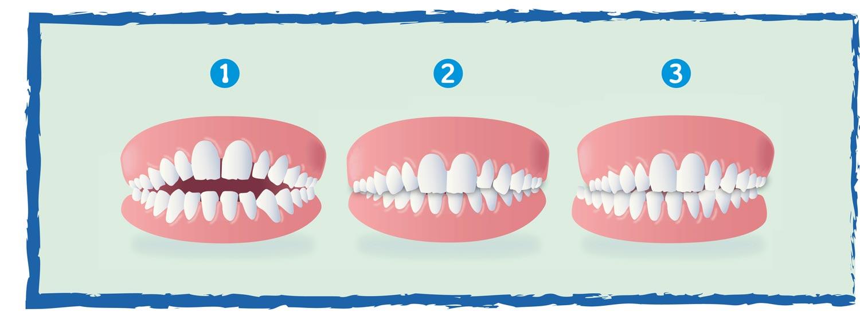 illustrazione difetti ortodontici