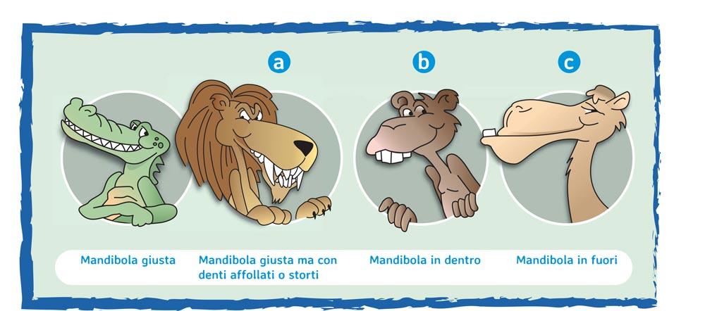 illustrazione malocclusione