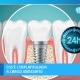 illustrazione denti e impianto dentale