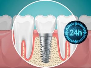 illustrazione impianto dentale