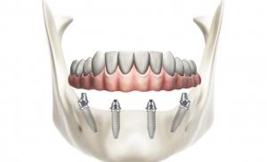 protesi fissa su 4 impianti