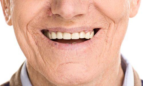 senior con impianti nuovo sorriso