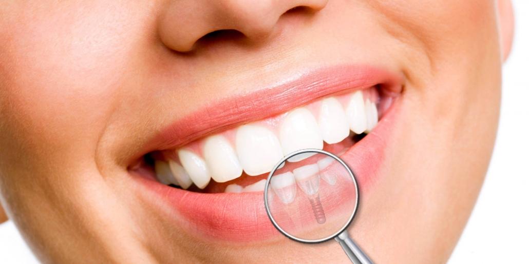 sorriso di donna con impianto dentale illustrazione