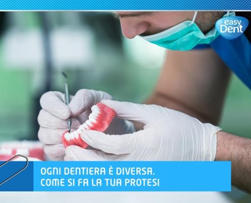 odontotecnico lavora su una protesi