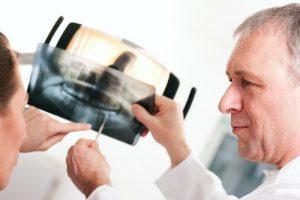 dentiera protesi mobile come si fa