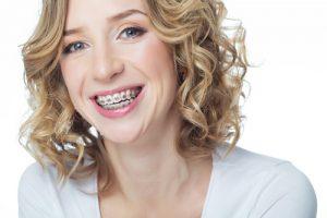 easydent ortodonzia apparecchio