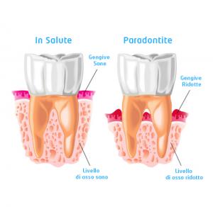 Differenza tra gengiva sana e gengiva con parodontite