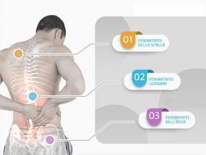 illustrazione artrite