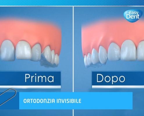 allineamento dentale, illustrazione prima e dopo la cura