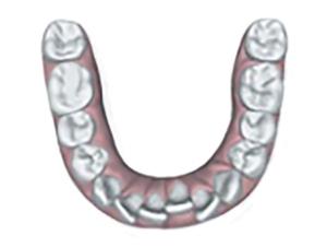 illustrazione affollamento dentale