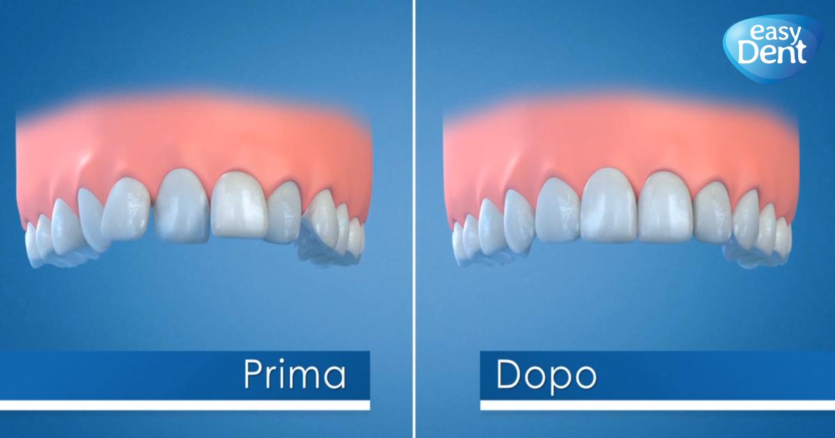 denti prima e dopo il trattamento