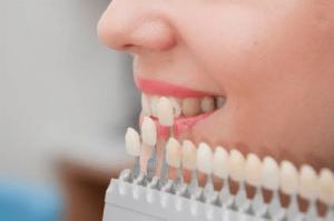 colori denti