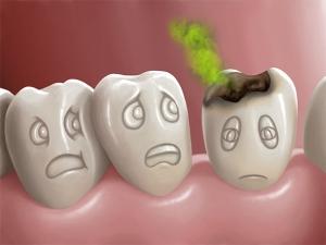dente cariato fumetto
