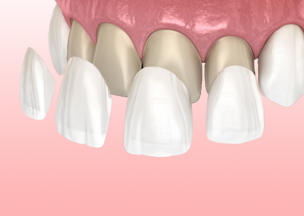 faccette dentali - illustrazione - easydent