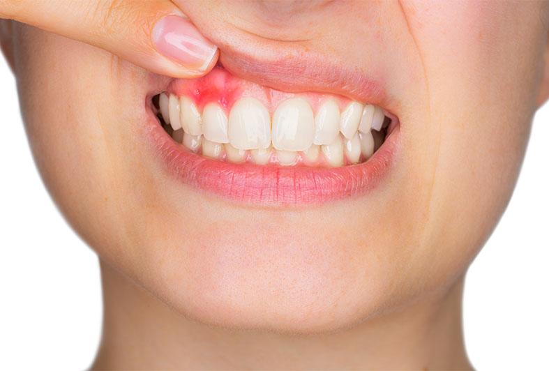 primo piano bocca di donna con arrossamento gengive