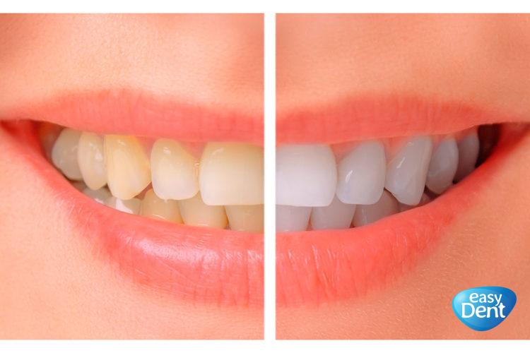 denti gialli e denti bianchi