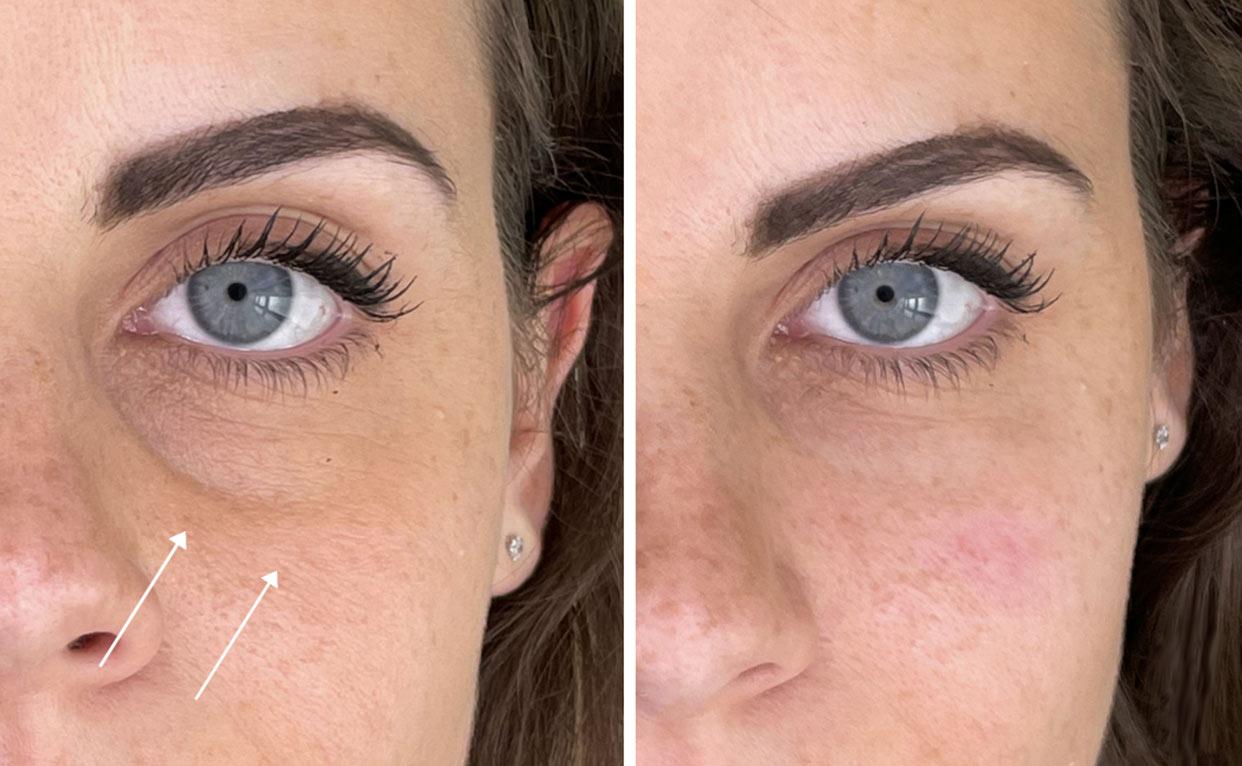trattamento riempitivo contorno occhi